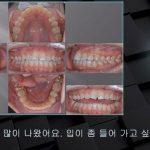 [교정 Case 1036] U5L5 발치, Protrusion, Class III, Lower Lingual Corticotomy.