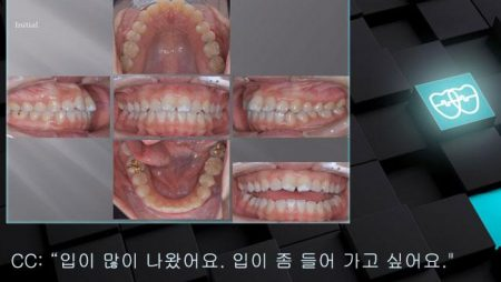 [교정 Case 1036] U5L5 발치, Protrusion, Class III, Lower Lingual Corticotomy.