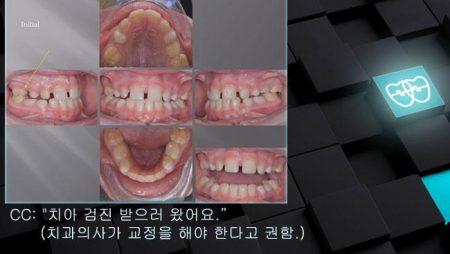 [교정 Case 1013(1)] 1차 교정, Correction of Rotated #16, Advancing Z Arch.
