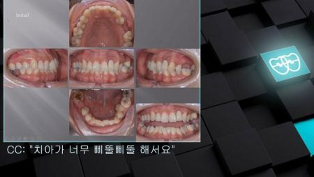 [교정 Case 1054] 비대칭 발치, #22 Implant Anchorage 활용, Dental Deepbite, Dental Midline.