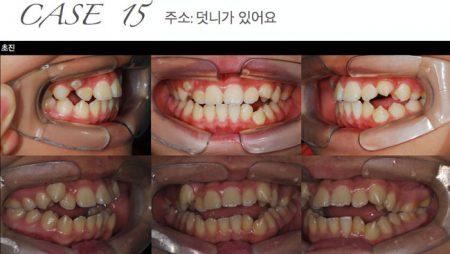 [교정 Case 15] CO-CR discrepancy 크지만 턱관절 증후가 없으면서 심한 총생을 보이는 성장기 환자의 교정치료