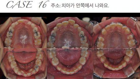 [교정 Case 16] 심한 공간부조화를 보이는 성장기 2급 혼합치열기 환자의 소구치 발치 및 상악의 성장조절을 통한 교정치료