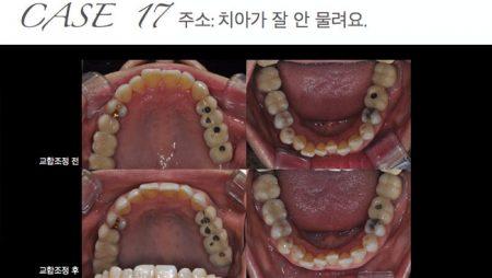 [교정 Case 17] 보철 치료 후 외상성 교합 해결을 위한 교합조정