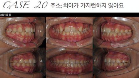[교정 Case 20] 측절치 반대교합과 돌출을 보이는 환자의 발치 교정치료