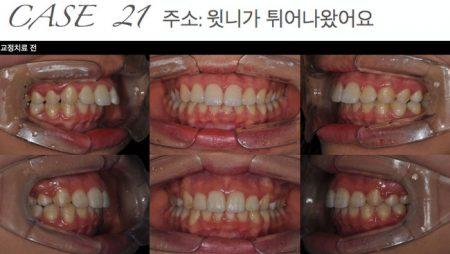 [교정 Case 21] 골격적 2급 돌출을 보이는 환자에서 편악발치를 통한 교정치료