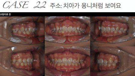 [교정 Case 22] 하악 전치부 미니플레이트를 이용한 과개교합 환자의 비발치 교정치료