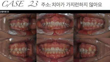 [교정 Case 23] 소구치 이소맹출과 총생을 동반한 환자의 발치교정치료