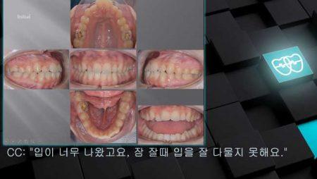 [교정 Case 1037] U5L4 발치, Protrusion, Skeletal Resistance, Lower Lingual Corticotomy, Torque Complication.