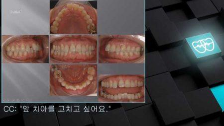 [교정 Case 897] 비발치, 부분교정, Upper Diastomer, Perio Ortho.