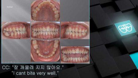 [교정 Case 1060] L5 Extraction, Skeletal Class III, Dental Edge-to-edge Bite, Lower Lingual Corticotomy.
