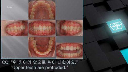 [교정 Case 724] U5 Extraction, Dental Deepbite, Bracket Errors, Prominent Chin.