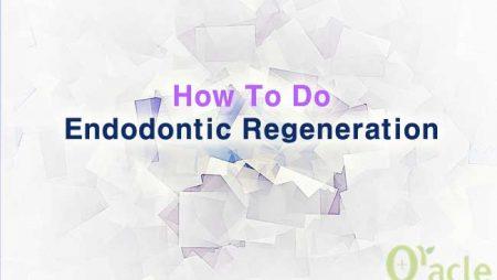 How To Do Endodontic Regeneration