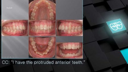 [교정 Case 202] U4L5 발치, Upper Molar Anchorage Control 실패, Upper Palatal Corticotomy, 교정 Case 1195로 재교정.