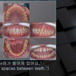 [교정 Case 1026] 비발치, Anterior Space Closure, Jaw Dislocation, Archwire Friction Control.