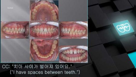 [교정 Case 1026] 비발치, Anterior Space Closure, Jaw Dislocation, Archwire Friction Control.