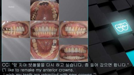 [교정 Case 1220] 부분교정, Prosth-Ortho., Proclined Upper Incisors.