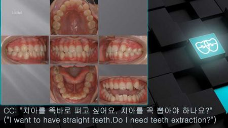 [교정 Case 862] U5L4 발치, Anterior Crossbite, Lower Crowding.