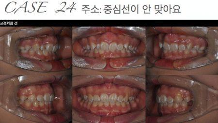 [교정 Case 24] 비대칭을 동반한 3급 부정교합 환자의 악교정수술 치료