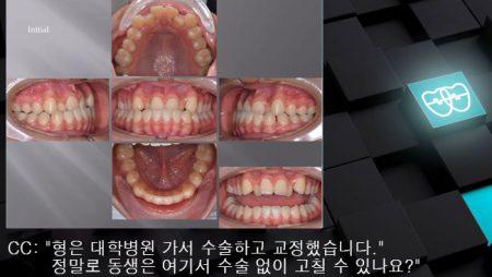 [교정 Case 1057]  U5L4 발치, Severe Class III, Anterior Crossbite, Lower Lingual Corticotomy.