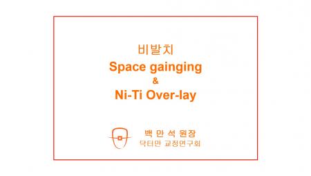 [case #181] NiTi overlay를 이용한 측절치 반대교합의 비발치 교정