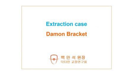 [case #141] 자가결찰 시스템 1 데이몬 브라켓 발치교정