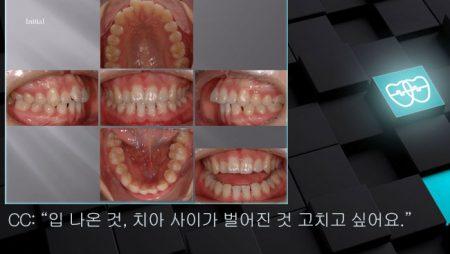 [교정 Case 696]  U5L2 발치, Gummy Smile, Tight Lips, Lower 2 Incisors Missing.