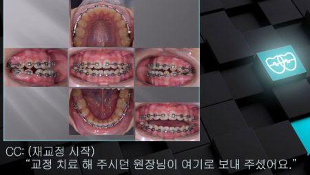 [교정 Case 1107(2)]  재교정, U5L4발치, Lower Lingual Corticotomy.
