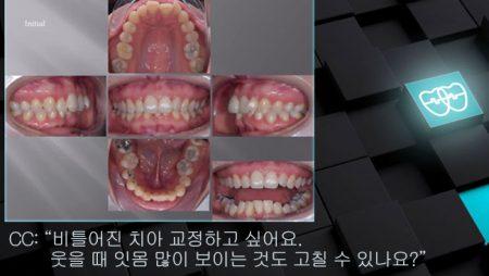[교정 Case 1136]  U5L1 발치, Dental Deepbite, Gummy Smile.
