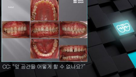 [교정 Case 825] 부분교정, Upper Anterior Space Closure, Prosth-ortho 교정, 성인교정.