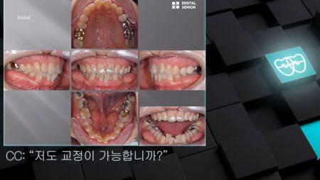 [교정 Case 1246] L1 발치, Lower Crowding, 성인교정, 부분교정.